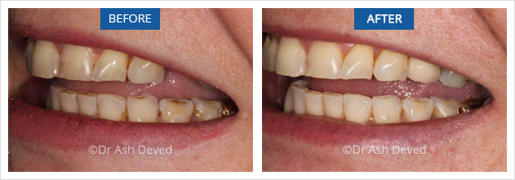 Dental Implants Sevenoaks