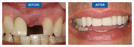 Dental implants Hazelwood