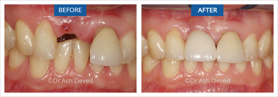 Dental implants Hazelwood Before and after of single tooth implant