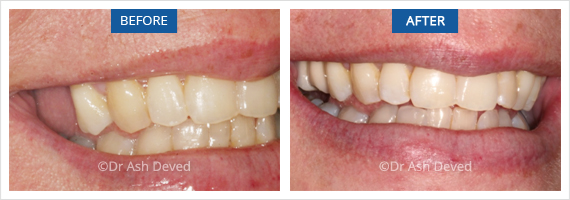 Before And After Multiple tooth implants