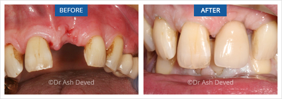 Before and after of single tooth implant