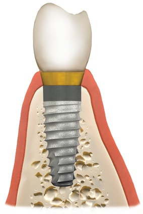 bone grafting material