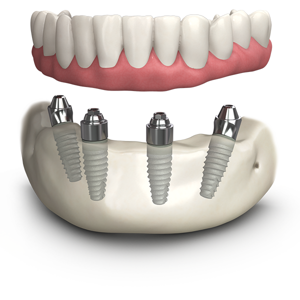 Dental Implants Bromley