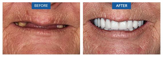 Same Day Teeth Bromley Case 1