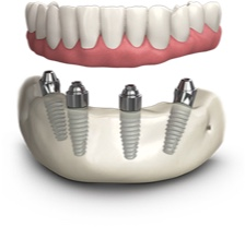 All On 4 Dental Implants Kent