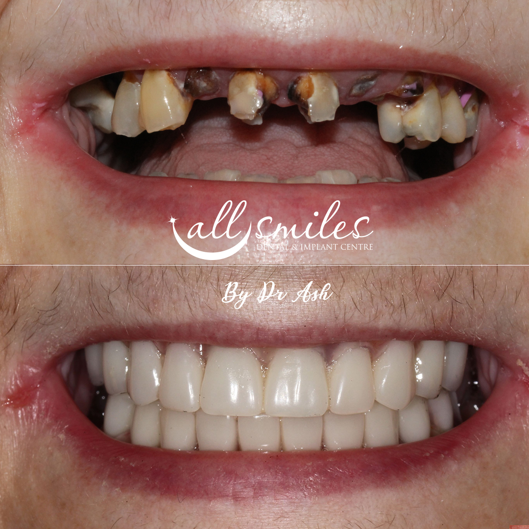 Same day Teeth BromleySame Day TeethSame day Teeth Bromley